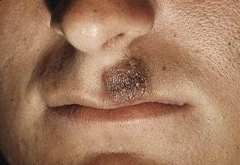 Пигментный невус на лице