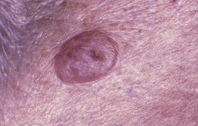 Внутридермальный невус на коже