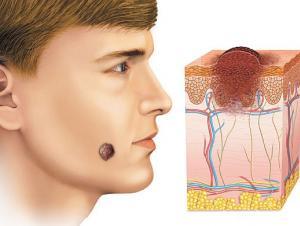 Структура невуса