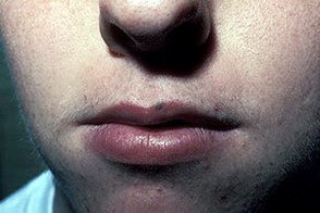 Голубой невус на губах