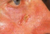 Папилломатозный невус на лице