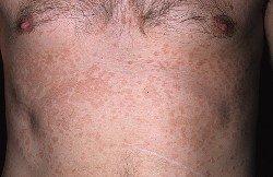 Отрубевидный лишай может возникнуть на спине, груди, в районе плеч, на голове.