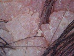 Папилломатозный невус: расположение и удаление фото