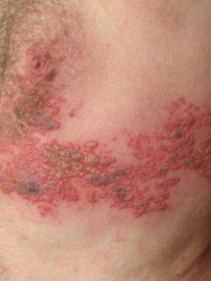 Опоясывающий лишай - это сложное инфекционное заболевание.