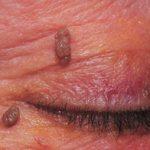 Лучше всего для удаления папиллом на веке обратится в офтальмологическую клинику.
