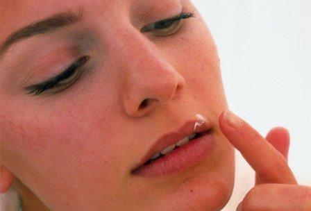 Простуда на губах - герпес