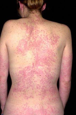 Если лечение острой крапивницы затянулось или не проводится, то она может перерасти в хроническую.