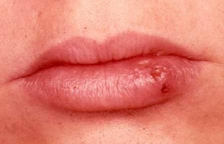 Как лечить герпес на губах: народные средства