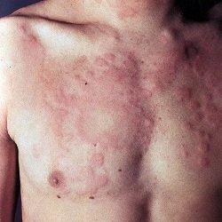 Крапивница: симптомы, лечение, причины появления фото