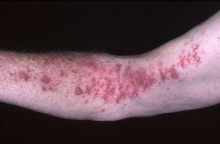 Опоясывающий герпес (лишай): лечение заболевания
