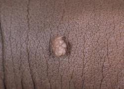 Причины возникновения кондилом на теле человека