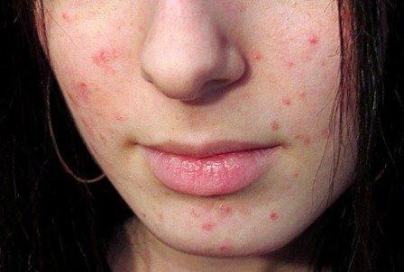 Чем вылечить прыщи на лице? Стоит ли использовать медикаментозные средства от прыщей?
