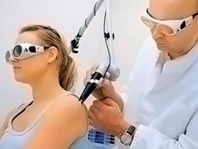 Удаление веснушек лазером на теле человека