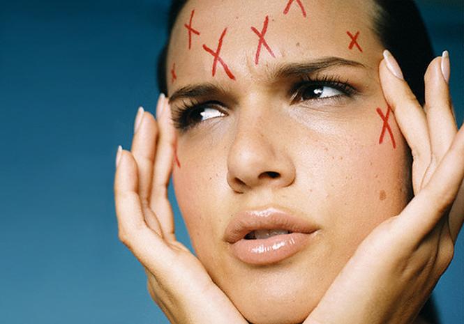 Правильный уход за кожей - один ил лучших методов избавления от прыщей или их предупреждения
