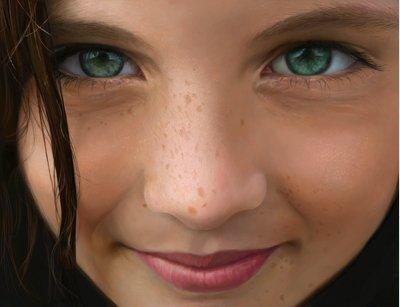 Веснушки на лице и на теле: современные способы лечения