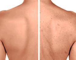 Прыщи на спине: причины и лечение фото