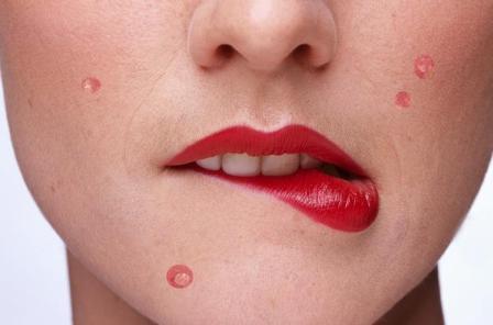 Простудные прыщи на лице и на теле: специальные методы и процедуры против воспалений