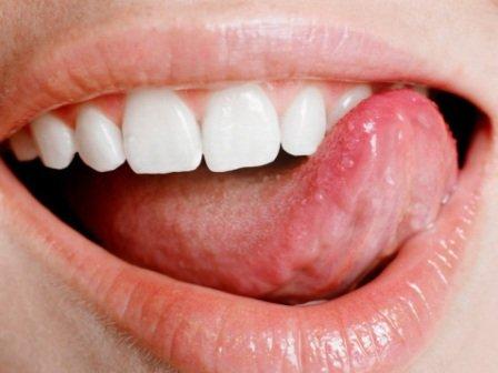 Белые прыщи на языке, красные прыщи на языке и воспаления