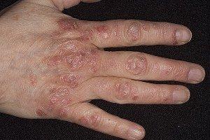 Симптомы псориаза: проявление заболевания на разных частях тела фото