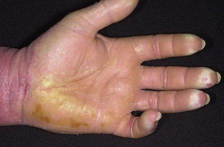 Симптомы псориаза на руках: пальцы и ладони