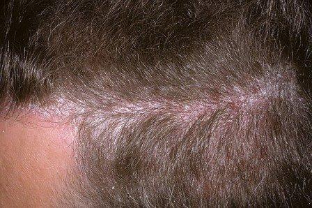 Как проявляется псориаз на волосистой части головы