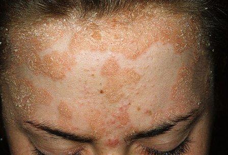 Псориаз на лице: симптомы и проявления
