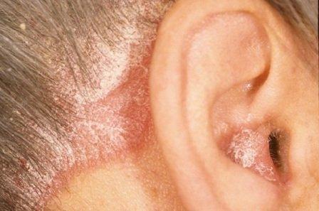 Народное лечение псориаза: эффективные рецепты против заболевания фото