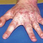 Причины чесотки, проявление заболевания и быстрое лечение
