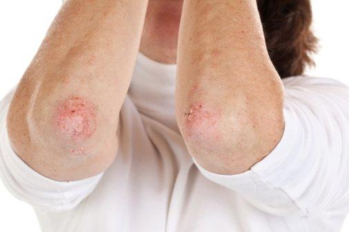 Прыщи на локтях и коже около локтей по причине экземы