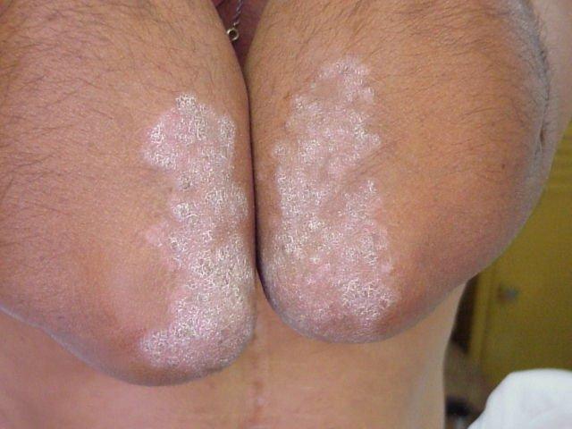 Прыщи и сыпи на локтях: атопический дерматит