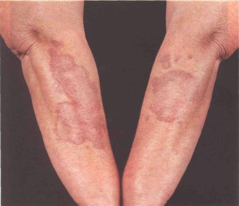 Прыщи и покраснения на локтях: кольцевидная гранулема