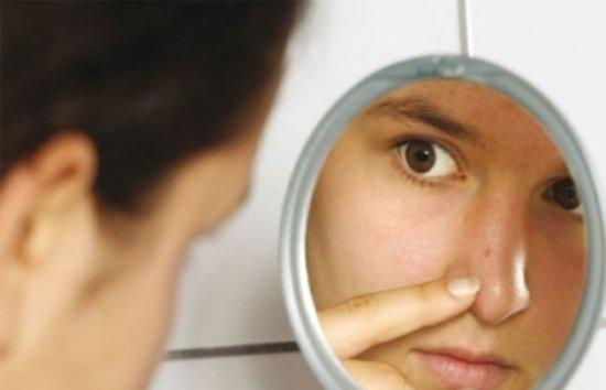 Боремся с черными точками на лице и других участках, используя йод и соль