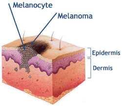 Стадии образования меланомы