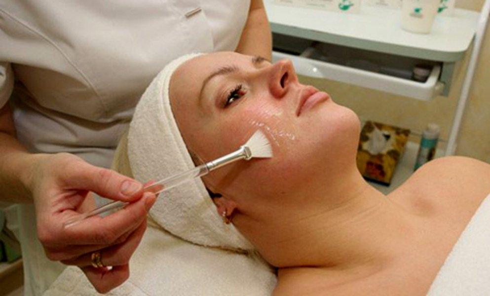 Насколько эффективен гликолевый пилинг от прыщей? Стоит ли его попробовать для очистки кожи?