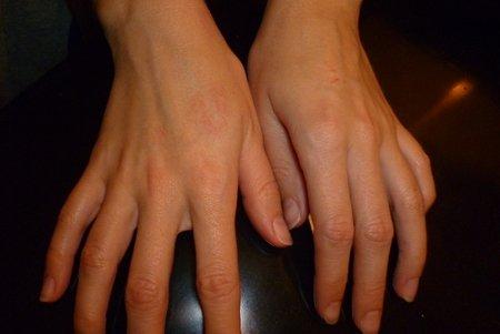 Зуд прыщей на руках и пальцах - серьезная и неприятная проблема, которую необходимо решать