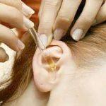 Прыщи в области ушей - серьезная проблема. Давайте разберемся с ней вместе