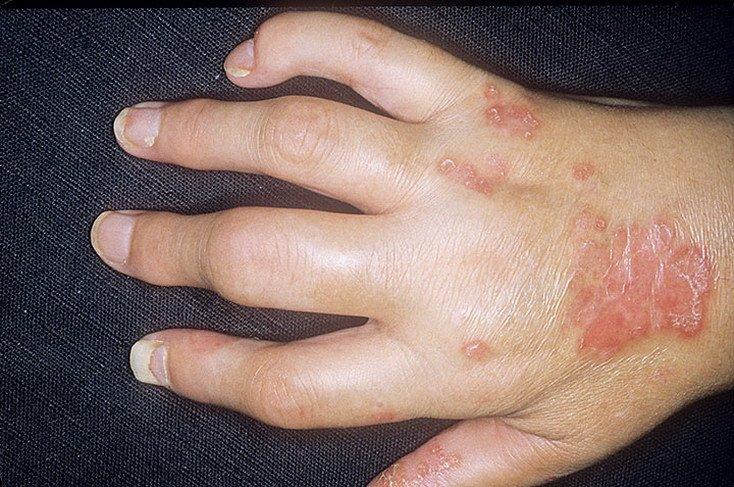 Псориатический артрит - вид заболевания, который поражает уже не только кожные покровы