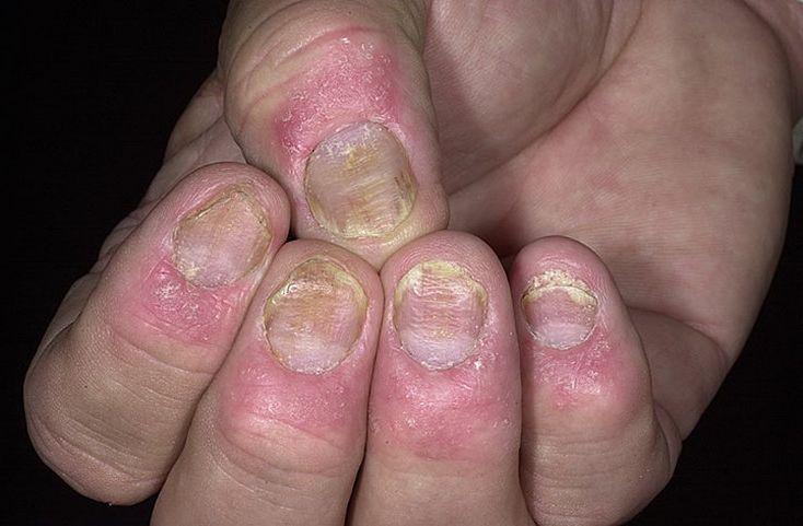 Псориаз ногтей - проблема, которую можно только частично залечить
