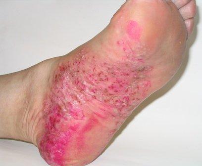 Пустулезный или экссудативный псориаз - один из самых серьезных видов проявления