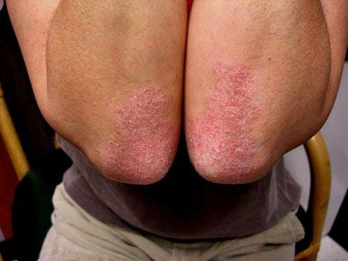 Какие виды псориаза сегодня различают специалисты медицины?