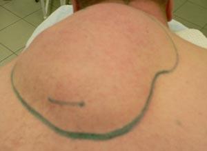 По каким причинам у человека образуются жировики под слоем кожи?