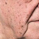 Кератомы на поверхности кожи: насколько опасны новообразования и как их удалить?