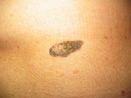Каковы причины появления кератом на поверхности кожи? Откуда берутся данные новообразования?