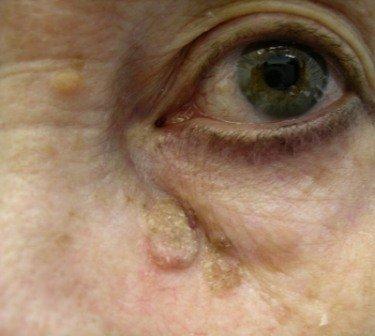 Обнаружив кератому на лице, на руках или ногах, проконсультируйтесь с доктором и выберите лучший метод удаления