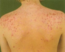 Прыщи на плечах: причины и методы лечения фото