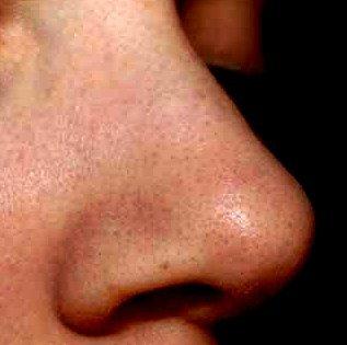 Черные точки на лице: как с ними бороться фото