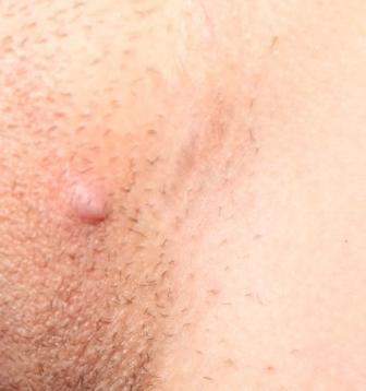 Прыщи на половых органах у женщин