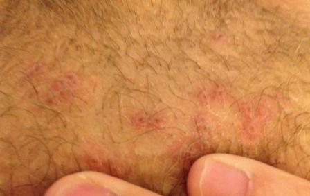 Лечение прыщей на половых органах
