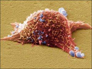 Виды рака кожи с фото и описанием