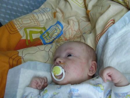 Прыщи у детей в первые месяцы жизни